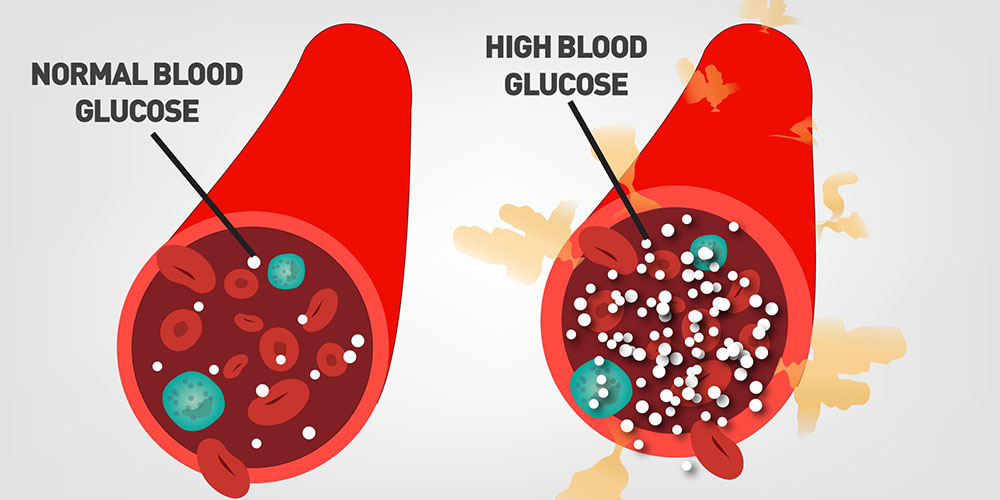 Wat is bloedsuiker?